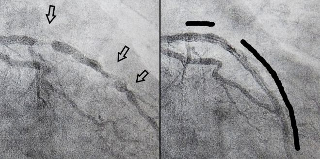 Contrast view of coronary arteries before and after stents